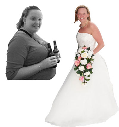 Jess before and after weight loss surgery